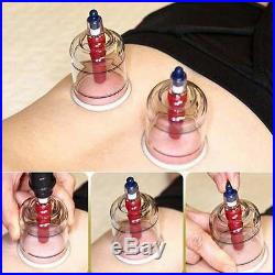 HANSOL CUPPING SET 30CUPS Slimming CUPPING Massage Acupuncture, Vacuum Therapy
