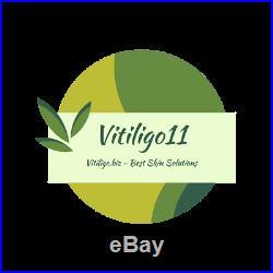 Neu! Vitiligo 11 Die 11 besten Lösungen zur Behandlung von Vitiligo